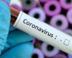 Лаборатория в Абхазии в 2 раза увеличила возможности тестирования на COVID-19